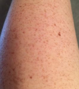 a pale skinned arm with freckles