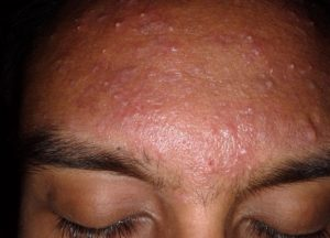 female with lots of Acne on her forehead
